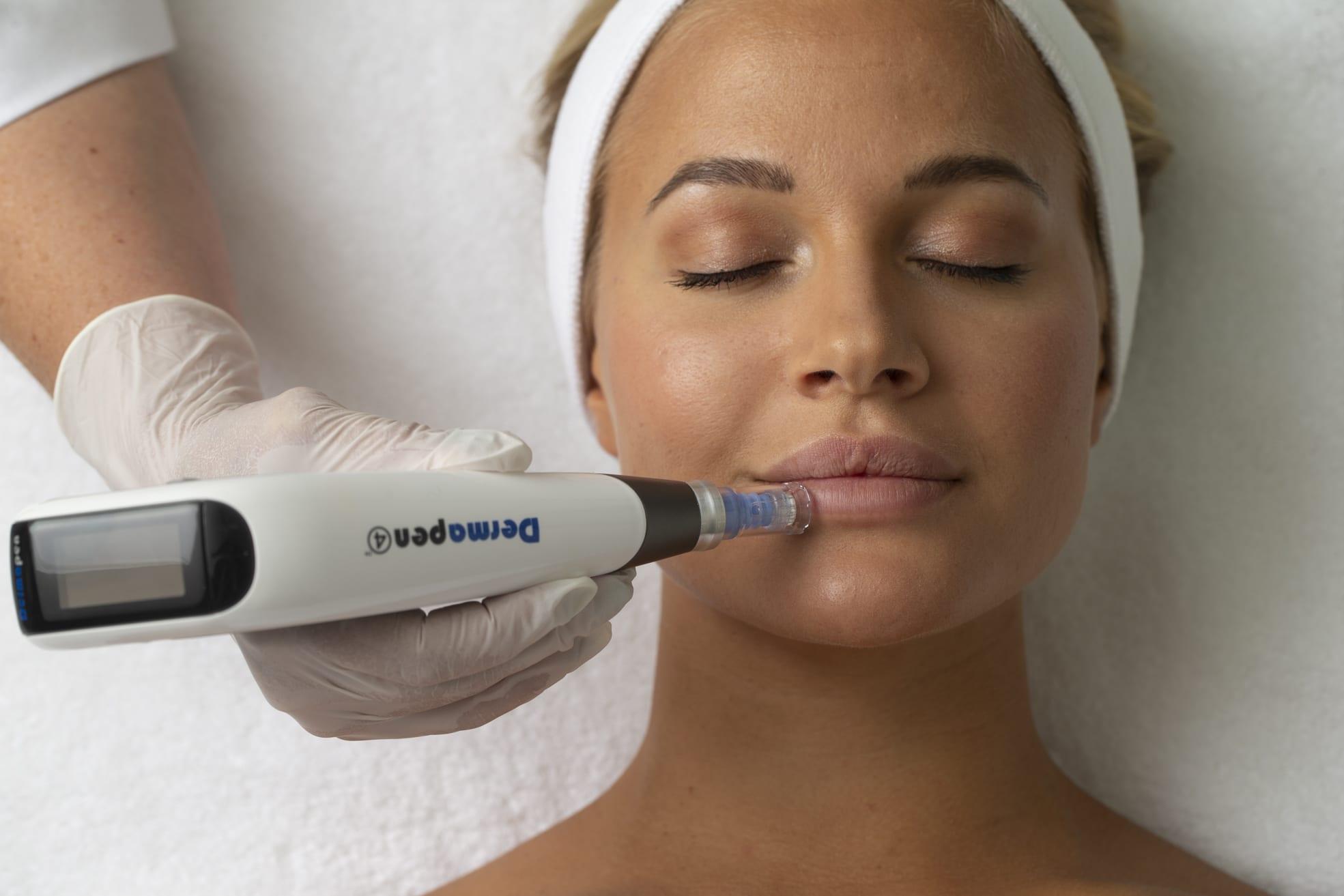 Bilde av behandling med Dermapen - Østfold Plastikkirurgi - Moss - Medisinsk Hudpleie, Kjemisk Peeling, Green Peel, Medisinsk Rynkebehandling