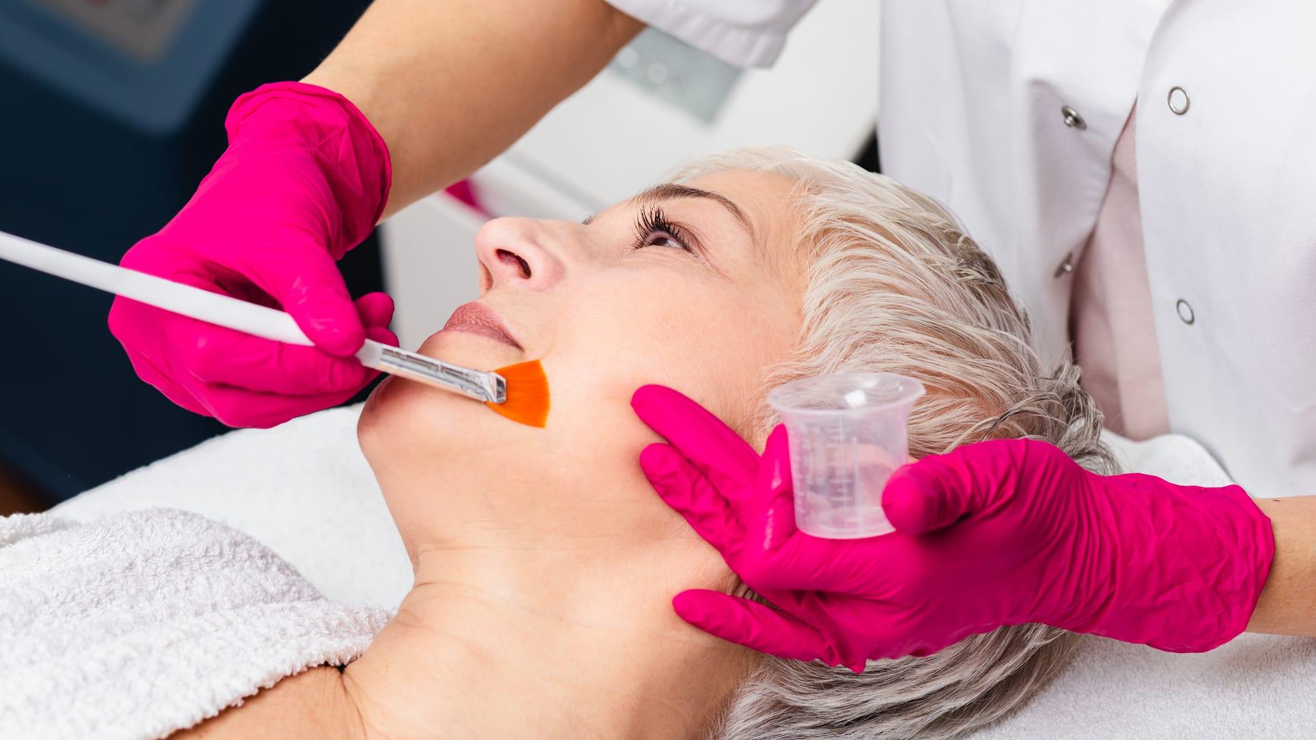 Bilde av utførelse med kjemisk Peeling på pasient - Østfold Plastikkirurgi Moss - Medisinsk Hudpleie